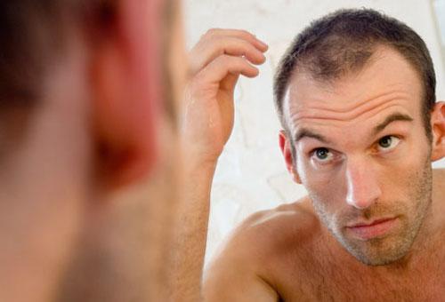 Nioxin vient au secours des hommes aux cheveux clairsemés