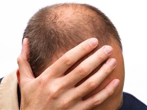Camoufler les zones clairsemées avec Hair 30